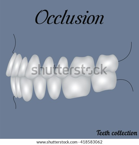 occlusion side view - bite, closure of teeth - incisor, canine, premolar, molar upper and lower jaw. Vector illustration for print or design of the dental clinic - stock vector