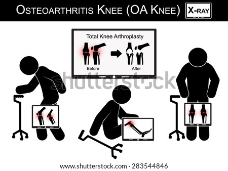 Old man pain at his knee , Monitor show image of Total knee arthroplasty ( before and after surgical treatment ) Osteoarthritis knee vector ( flat design ) ( Health care concept ) - stock vector
