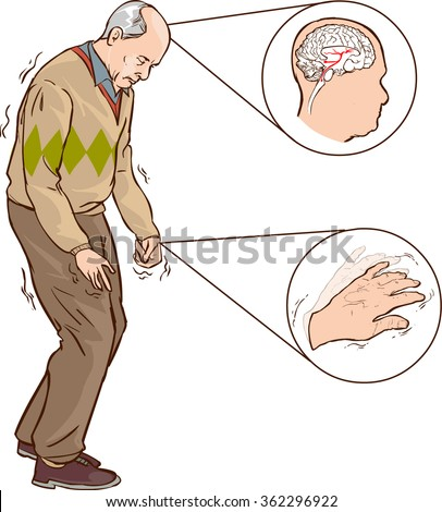 Old man with Parkinson symptoms difficult walking - stock vector