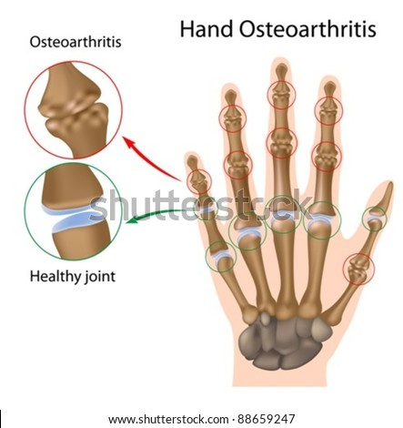 Osteoarthritis of the hand - stock vector