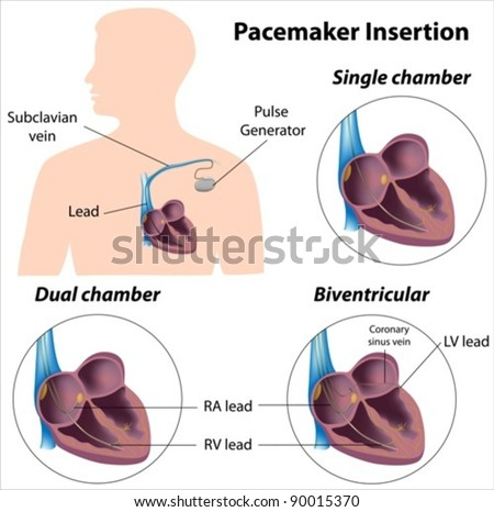 Pacemaker insertion surgery - stock vector