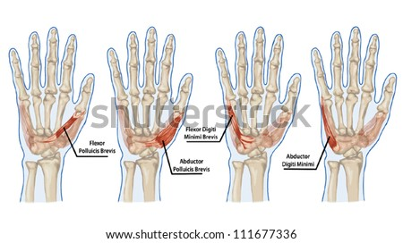Palm human muscle anatomy � abductor, flexor, digiti, brevis - hand - stock vector