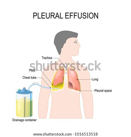 Pleural Effusion Diagram Showing Human Silhouette Stock Vector