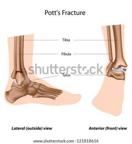 Pott's fracture - stock vector