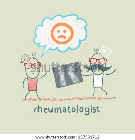 rheumatologist shows an x-ray the patient's legs - stock vector