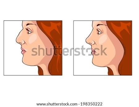 rhinoplasty - stock vector