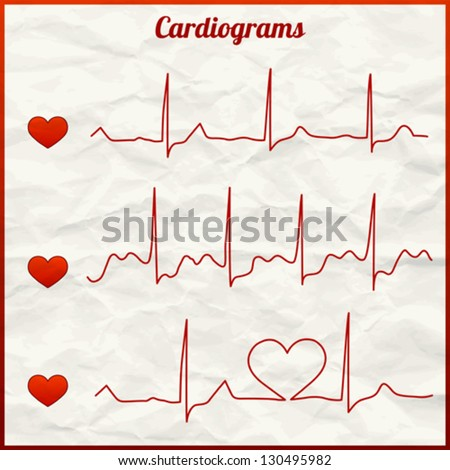 Set of 3 cardiograms (medical heart rhythm). Background is texture of crumpled paper. - stock vector
