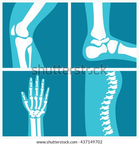 Set of human joints, knee joint, elbow joint, ankle joint, wrist, skeletal spinal bone structure of Human Spine, emblem or sign of medical diagnostic center or clinic, flat vector illustration. - stock vector