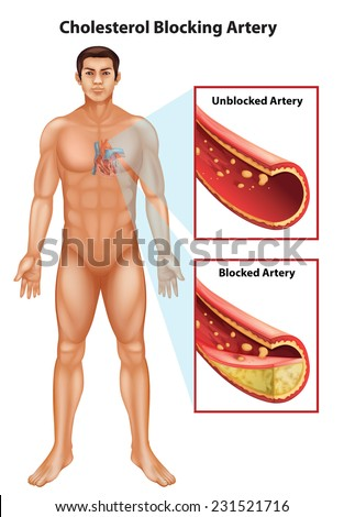 Showing the process of ateriosclerosis - stock vector
