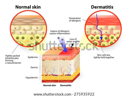 Skin disease. dermatitis or eczema. labeled diagram - stock vector