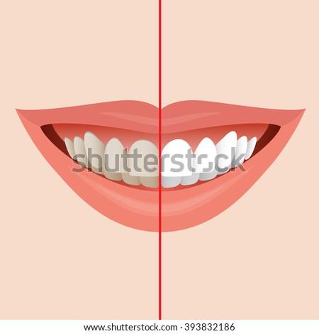 how to clean teeth before dentist
