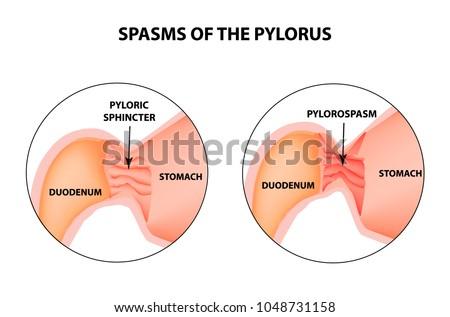Spasms Pylorus Pylorospasm Spastic Atonic Pyloric Stock Vector
