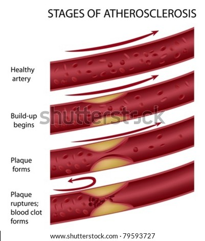 Stages of atherosclerosis - stock vector