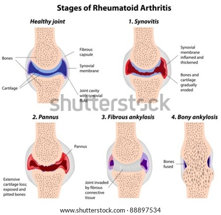 Stages of rheumatoid arthritis in a synovial joint - stock vector