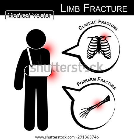 Stick man with arm sling (clavicle and forearm fracture) and text bubble  (Medical vector) - stock vector