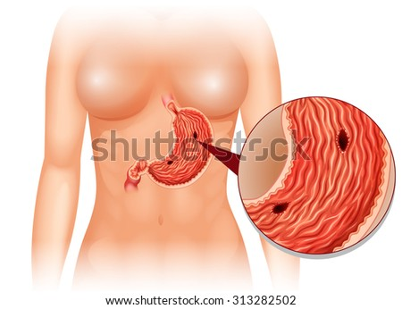 stock vector stomach ulcer diagram in woman illustration 313282502 stomach ulcer stock images, royalty free images & vectors