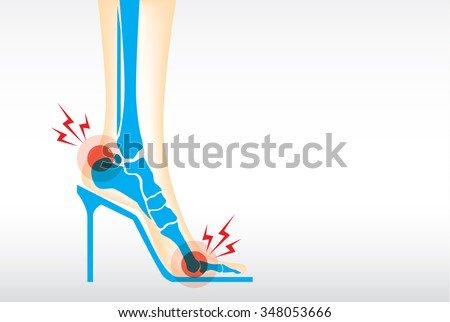 Symptom pain on foot because wearing high heels make heel bone damage and muscles. - stock vector