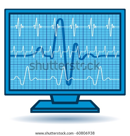 The Monitor with a set of diagrams. Each object is fully editable and is located on a separate layer - stock vector