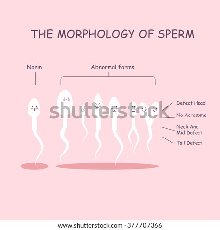 It's causes of poor sperm morphology poor Courtney still