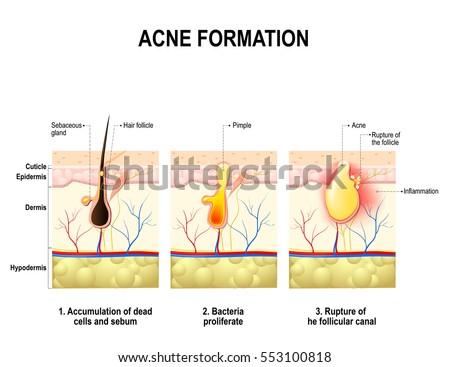 Three Stages Acne Formation Human Skin Image Vectorielle De Stock De
