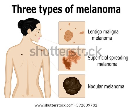 melanoma stock images, royalty-free images & vectors | shutterstock, Human Body