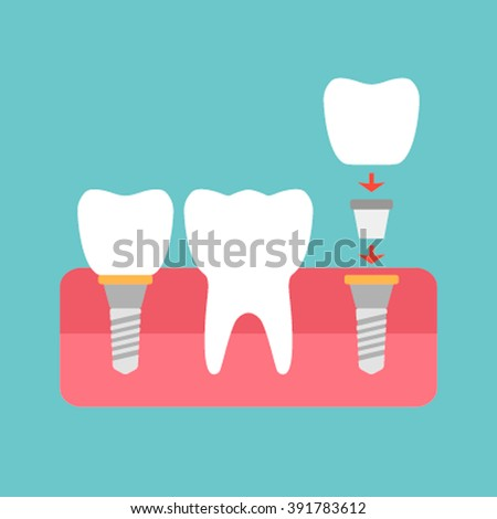 Tooth implant healthy icon vector silhouette.  - stock vector