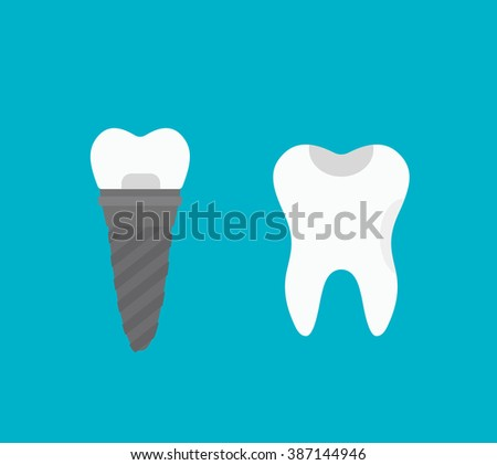 Tooth implant vector illustration. Tooth implant vector isolated on white background. Tooth implant vector icon illustration. Tooth implant vector isolated vector. Tooth implant vector flat silhouette - stock vector