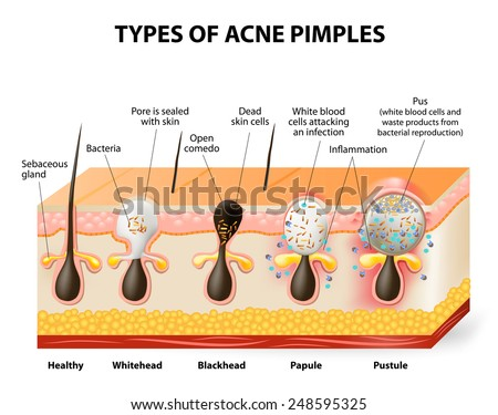 Types Acne Pimples Healthy Skin Whiteheads Stock Vector