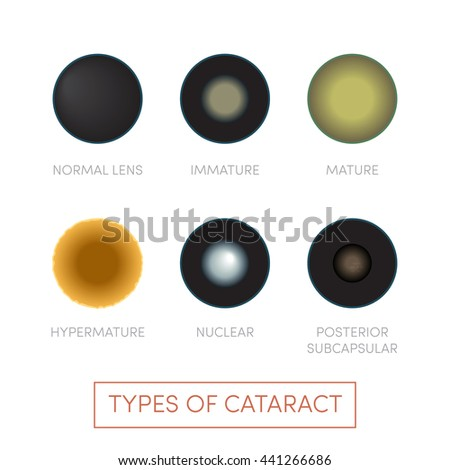 cataract forms When a cataract forms, the natural human lens becomes cloudy, often a  yellowish-brown color it not only blocks light from entering the eye, but also  scatters.