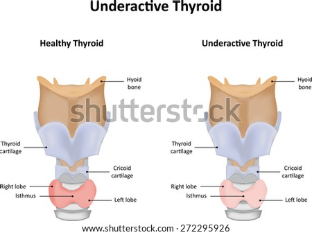 Underactive Thyroid Gland - stock vector
