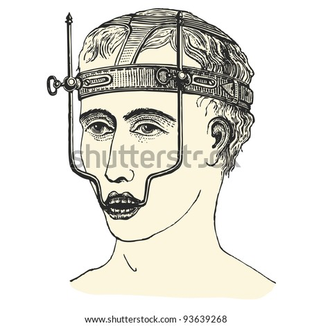 "Upper jaw fracture - vintage engraved illustration - ""Manuel des hospitalière et des garde-malaldes"" edited by Librairie Poussielgue - Paris 1907 - stock vector"
