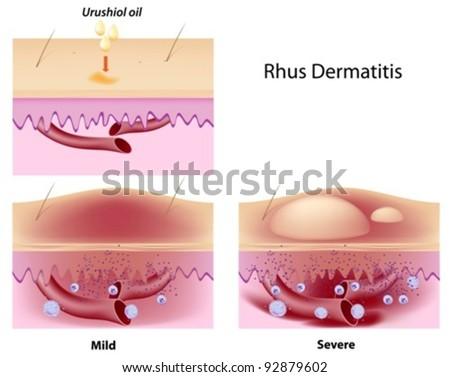 Urushiol oil induced contact dermatitis - stock vector