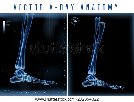 Vector 3D X-ray transparent leg view on a black background - stock vector