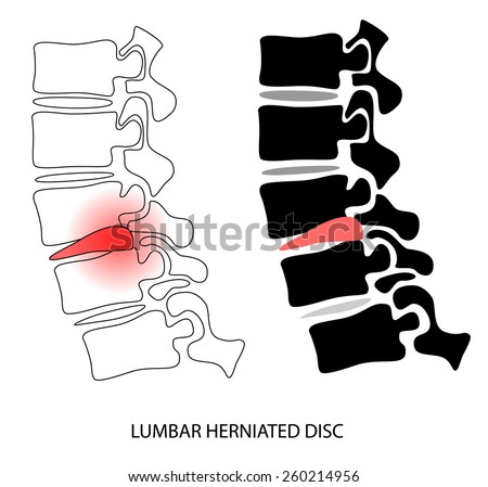 Vector design of human vertebra disc hernia lateral view  - stock vector