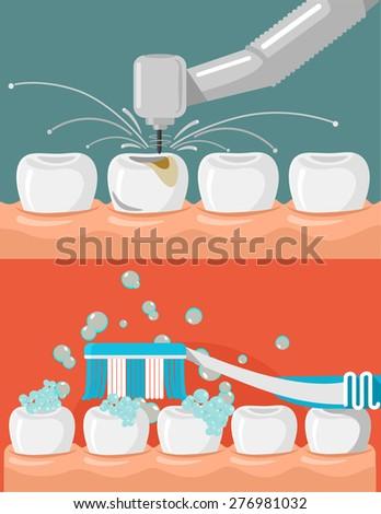 Vector flat stomatology illustration set - stock vector