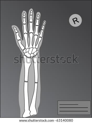 vector human hand roentgen with fracture - stock vector