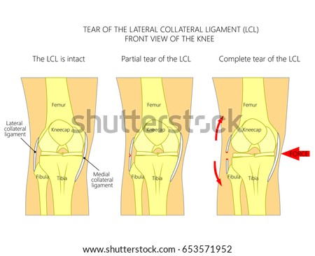 Vector illustration anatomy knee joint healthy stock vector royalty vector illustration anatomy of a knee joint with healthy ligaments and sprain tear rupture ccuart Image collections