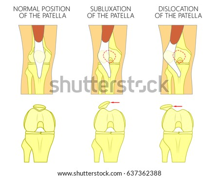 Vector Illustration Healthy Human Knee Joint Stock Vector 637362388