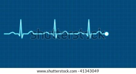 Vector illustration of a heart monitor showing an electrocardiogram (ECG) - stock vector