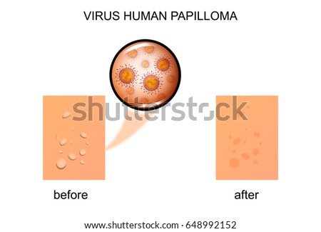 Keratosis Stock Images, Royalty-Free Images & Vectors ...