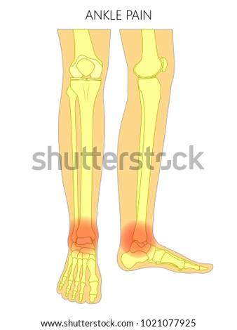 Vector Illustration Bones Human Legs Anterior Stock Vector