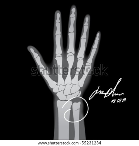 Vector illustration of brooken hand. X-ray. - stock vector