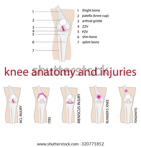 vector illustration of knee anatomy and injuries - stock vector