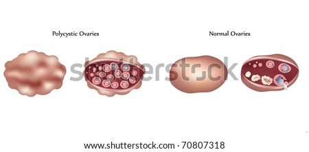 Vector Polycystic ovary and normal ovary differences - stock vector