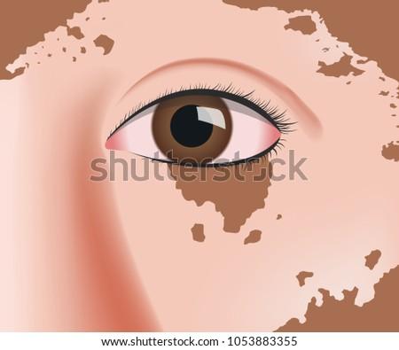 Vitiligo Face Skin Layer Anatomy Vector Stock Vector 1053883355 ...
