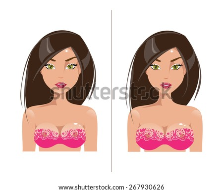 the art of breast augmentation Breast reconstruction and augmentation are very common procedures, yet the prevailing current methods utilize silicone implants that may have significant local complications requiring reoperation.