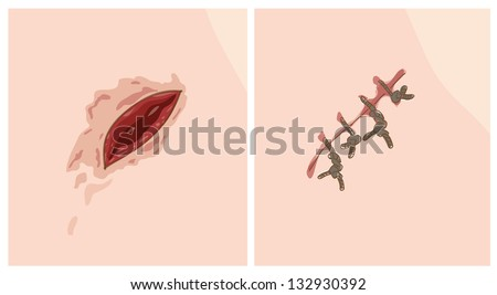 Wound and scar. Vector illustration. - stock vector