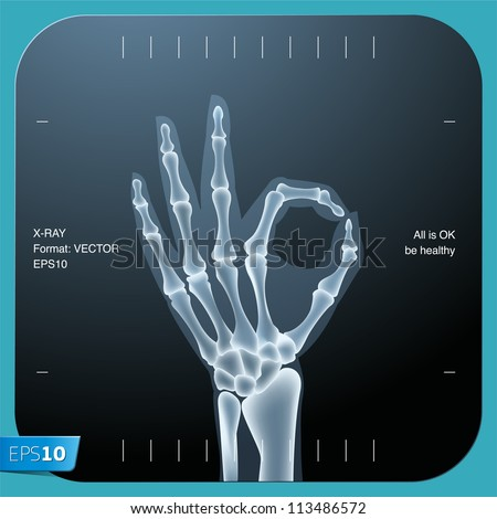 X-ray of both human hand (OK!), vector Eps 10 illustration. - stock vector
