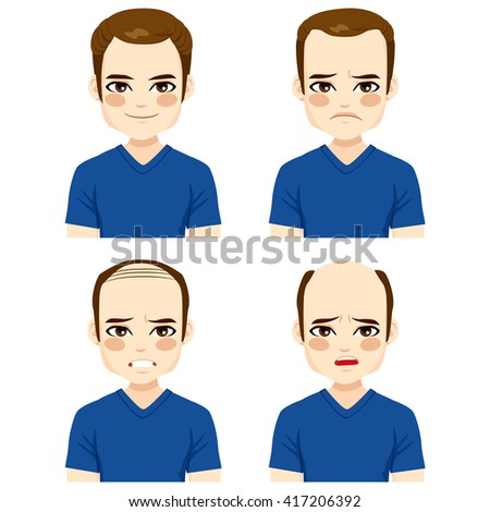 Young male with different stages of hair loss - stock vector